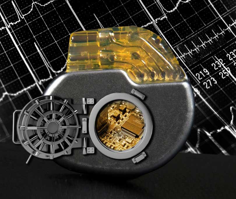 safe pacemaker illustration