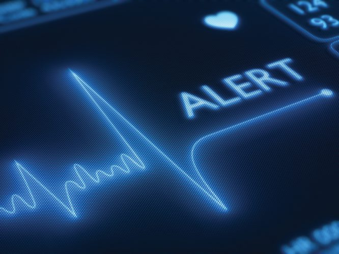 Flat line alert on a heart monitor - 3d render on detail pixelated screen
