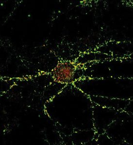 microscopic view of healthy cultured mouse neuron.