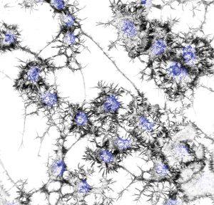 digital drawing of neuronal cells